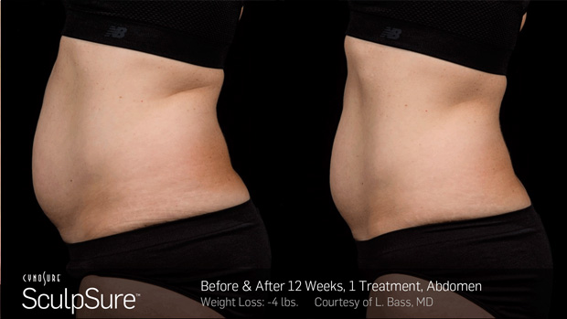 BA_More_Sculpsure_10