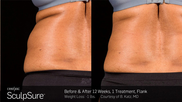 BA_More_Sculpsure_11
