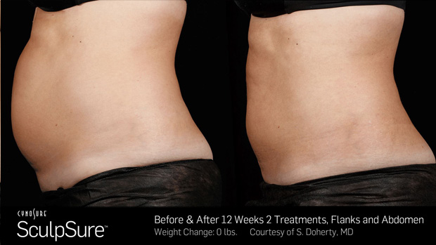 sculpsure before  u0026 after fat removal